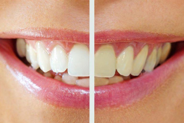 Bleaching gegen unschöne Zahn-Verfärbungen