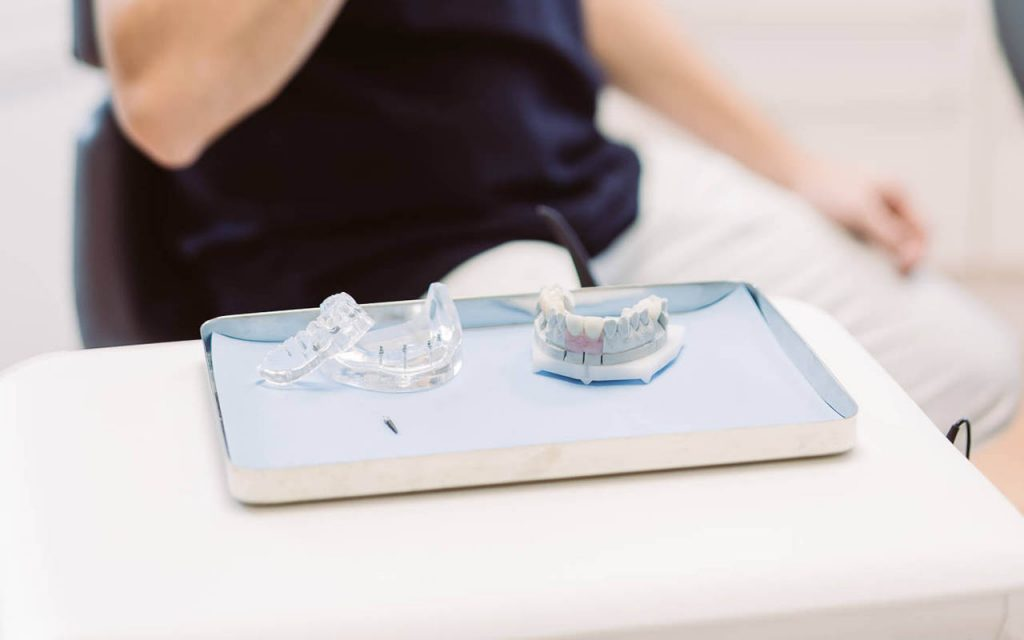 Zahnbrücken und Zahnprothesen für schöne Zähne