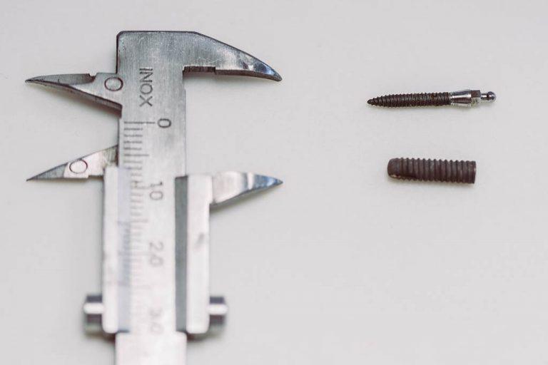 Chirurgischer Eingriff für das perfekte Implantat