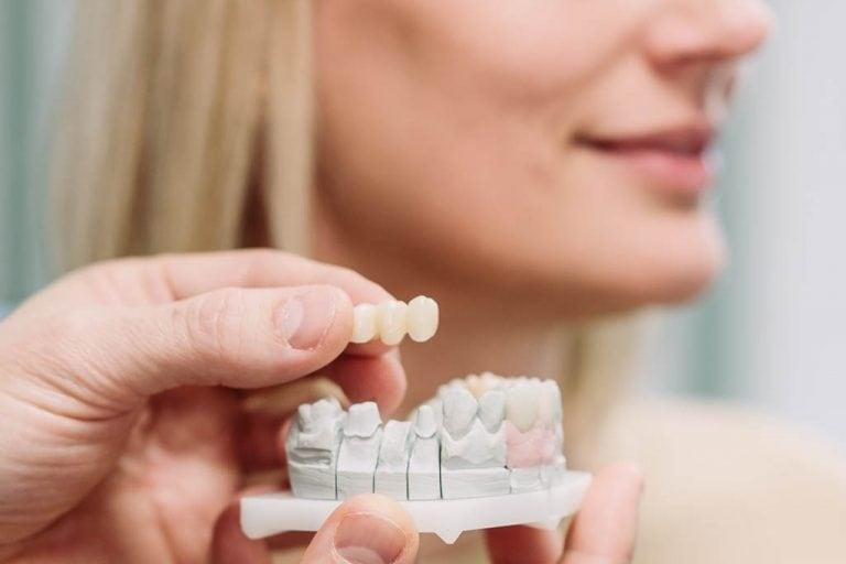 Implantate in unserer Zahnarztpraxis