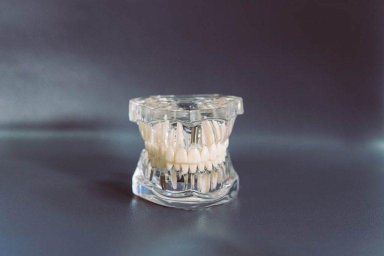 Zahnimplantate aus Wels